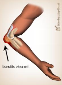 arm-bursitis-olecrani-anatomie